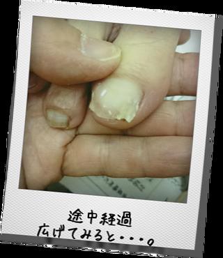 巻き爪2-1