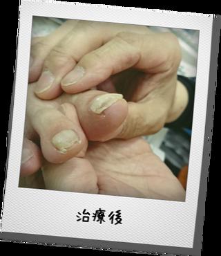 巻き爪3-1