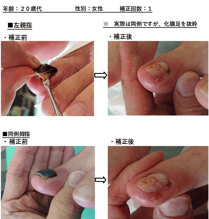 巻き爪 2枚爪・化膿・棘